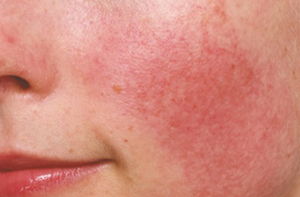 Best Natural Skincare For Rosacea
